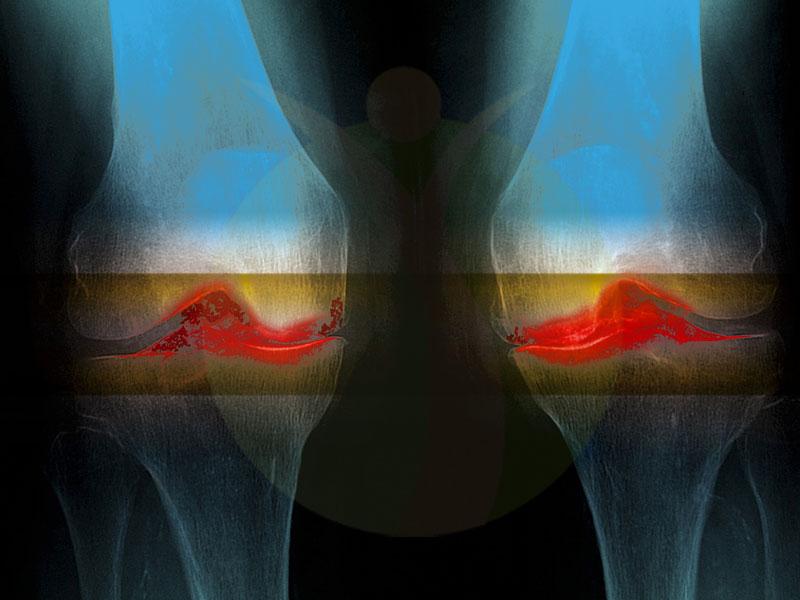 آرتروز یا ساییدگی مفصل چیست و چه علائمی دارد ؟