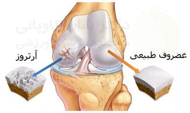 علایم ساییدگی مفصل زانو