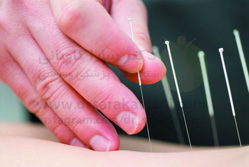 طب سوزنی و کاهش درد ناشی از سرطان