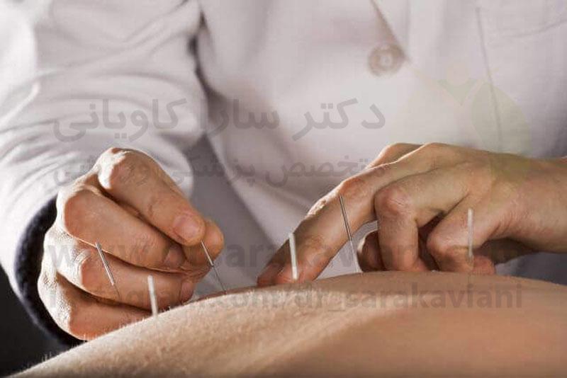طب سوزنی و درمان پسوریازیس