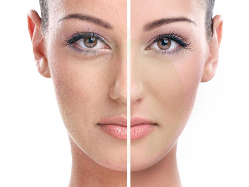 طب سوزنی صورت چیست؟ مزایای پوست ، هزینه و عوارض جانبی