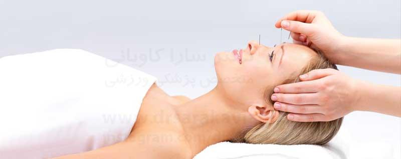 فواید طب سوزنی برای سردرد