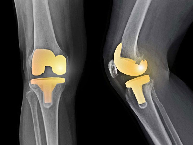 هدف از تعویض مفصل زانو چیست؟