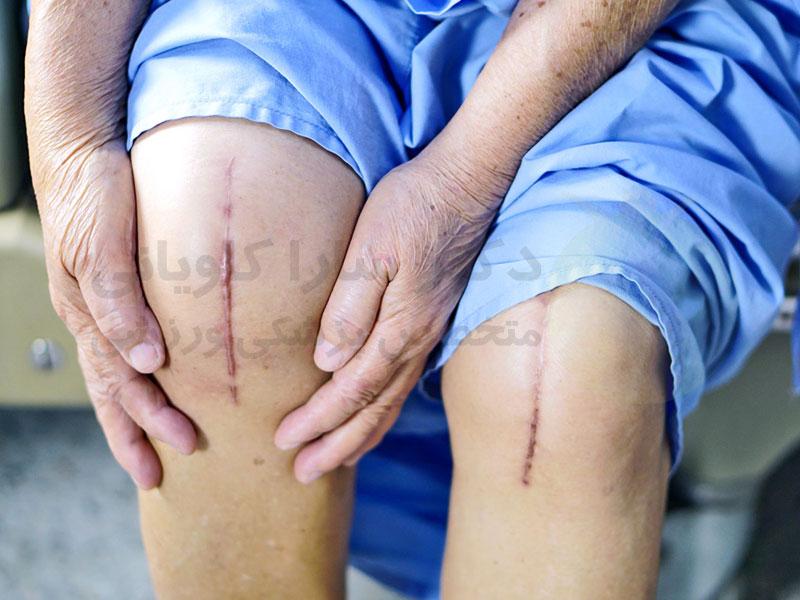 بعد از تعویض مفصل زانو چه اتفاقی می افتد؟