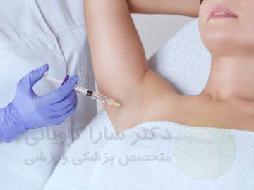 تزریق بوتاکس برای رفع تعریق زیر بغل