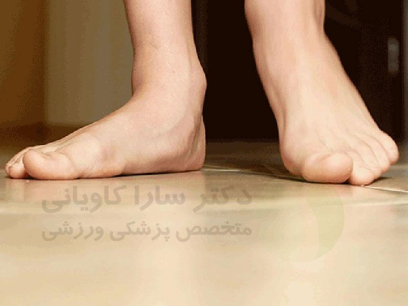 صافی کف پا چیست؟