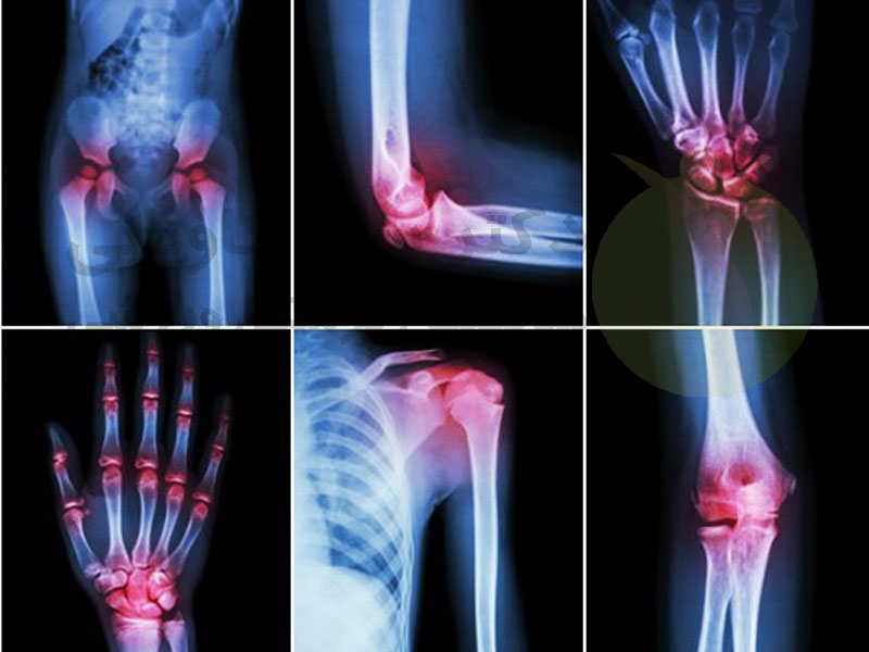 آرتریت چگونه تشخیص داده می شود؟