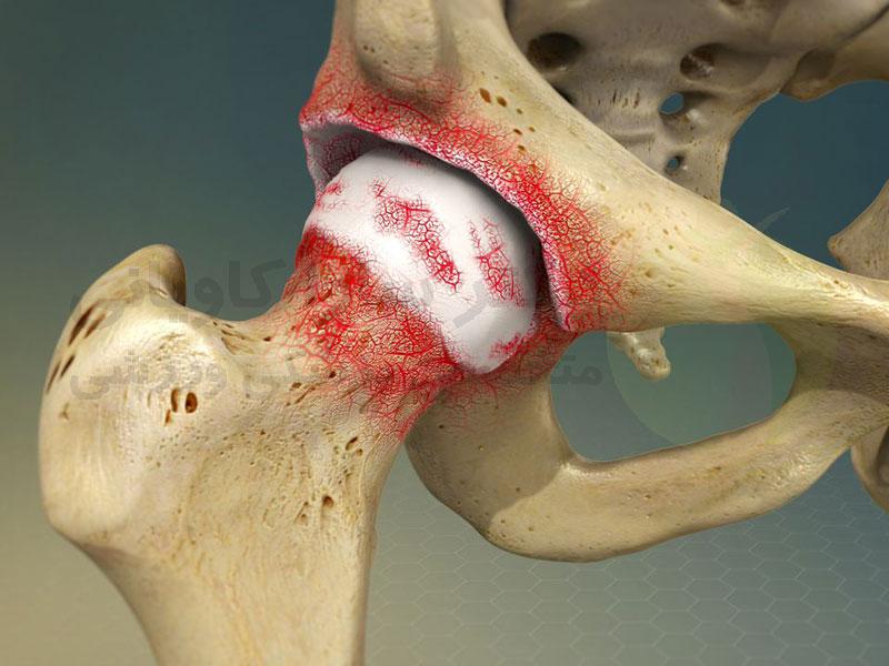 آرتروز یا استئو آرتریت چیست؟