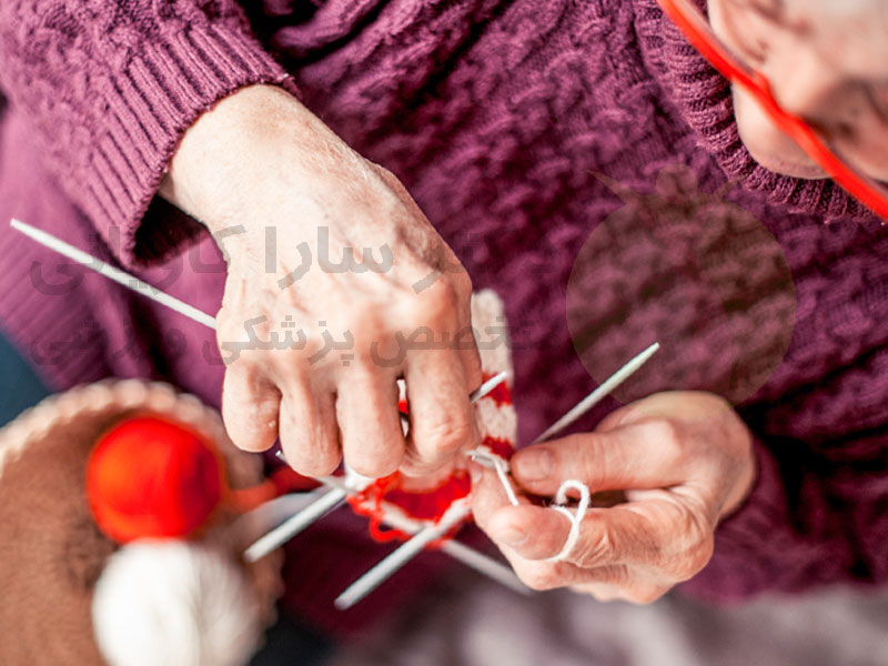 آرتروز دست: علائم ، درمان و موارد دیگر