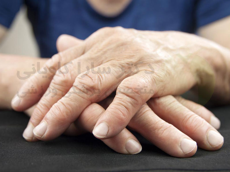 تشخیص آرتروز دست